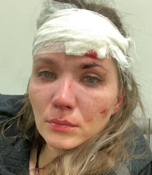Анастасия Веденская получила травму головы