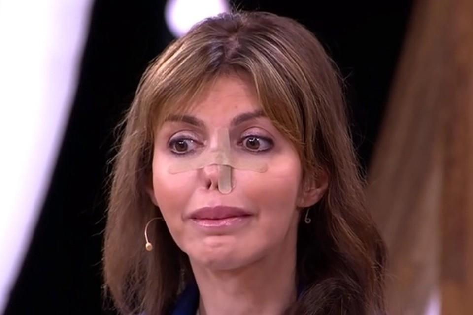 Из-за тяжелого аутоиммунного заболевания Алиса Аршавина почти лишилась носа. Фото: кадр видео.